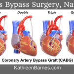 Bypassing bypass surgery, naturally