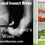 Sunburn and Insect Bites – How To Fix Summer's Woes